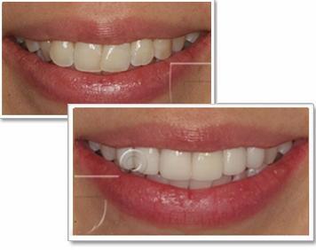 치아와 뼈는 동일 할까?