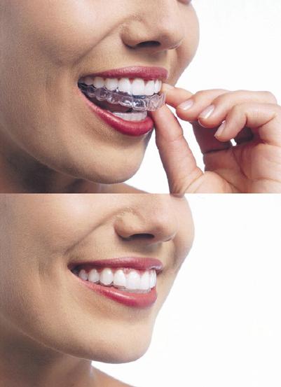 [치아건강] 청소년기부터 시작하는 잇몸관리 '스케일링'